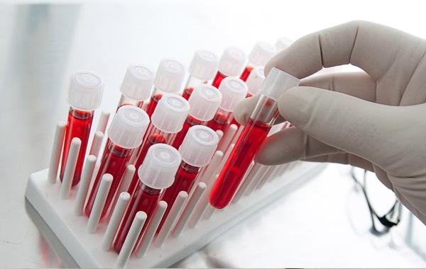 Νέο τεστ αίματος ανιχνεύει οποιονδήποτε καρκίνο μέσα σε δέκα λεπτά